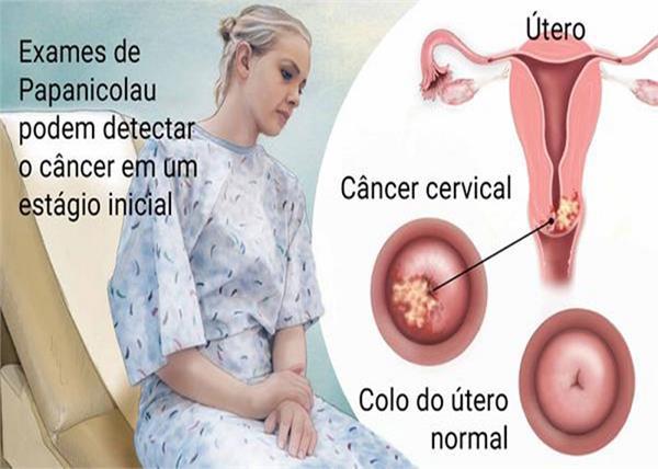 Alert! 50% महिलाएं सर्वाइकल कैंसर की शिकार, संकेतों की पहचान ही पहला बचाव