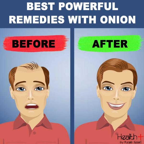 best powerful remedies with onion