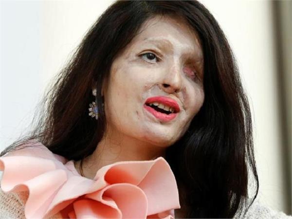 Inspiration: जीजा के एक बदले ने बिगाड़ा था रेशमा का चेहरा लेकिन नहीं तोड़ पाया हौंसला