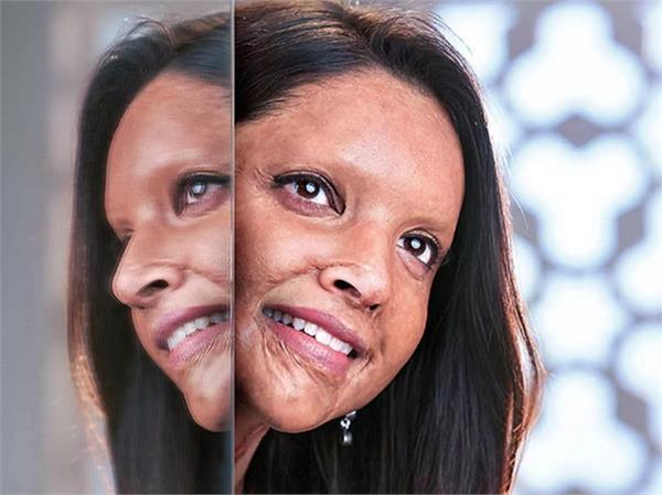 एसिड सर्वाइवर बनने के लिए दीपिका ने करवाया Prosthetic Makeup, जानिए कैसे दी जाती हैं यह लुक?