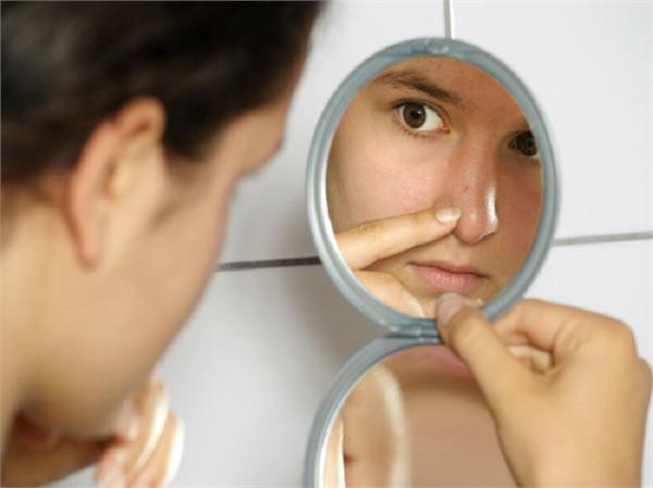 Beauty Tips: जिद्दी से जिद्दी ब्लैकहैड्स आसानी से निकालेंगे ये देसी नुस्खे
