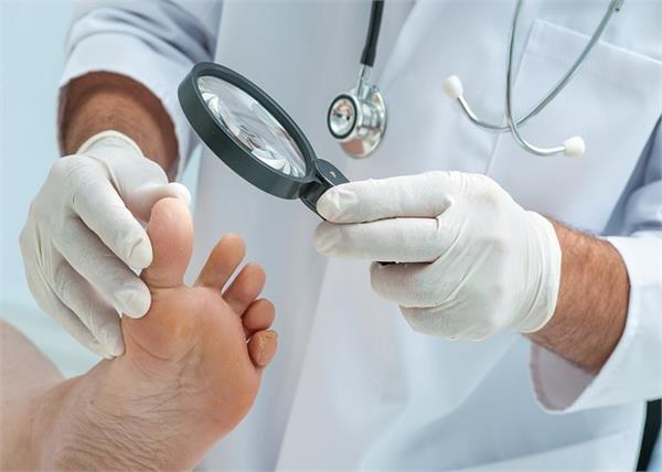 पैरों में सबसे जल्दी फैलता है इंफैक्शन, 8 टिप्स से करें बचाव