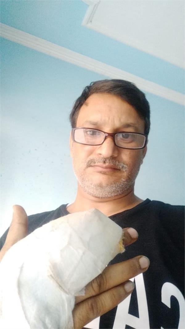 delay in treatment patient lost finger