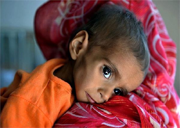 Child Care :बच्चे की सेहत नहीं बनने देता सूखा रोग, जानिए लक्षण और बचाव