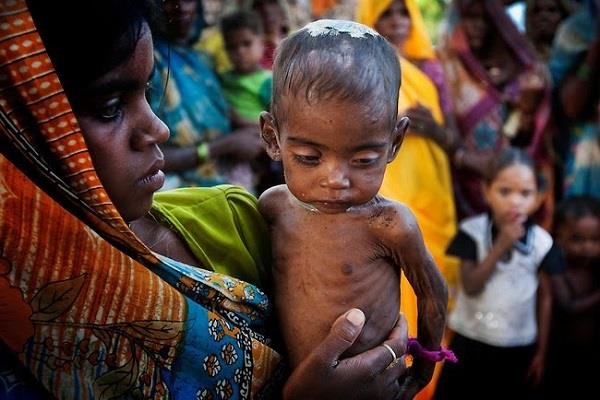 malnutrition decreased in india but obese people grew