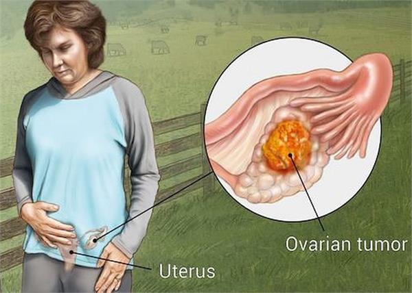 महिलाओं में बढ़ते ओवरी कैंसर के संकेतों को न करें इग्नोर, इस 1 चीज से होगा बचाव