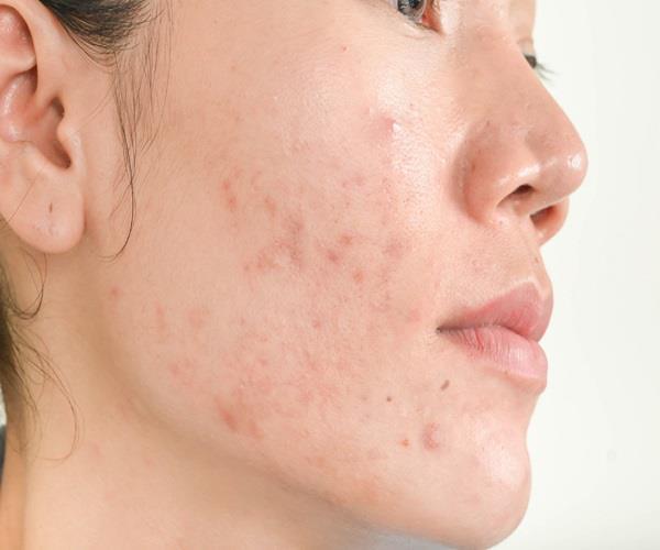 Beauty Tips: कील-मुंहासों से छुटकारा दिलाने में मदद करेगा चंदन पाउडर