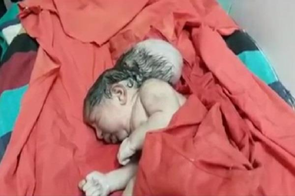 woman gave birth to a 3 head baby see amazing photos