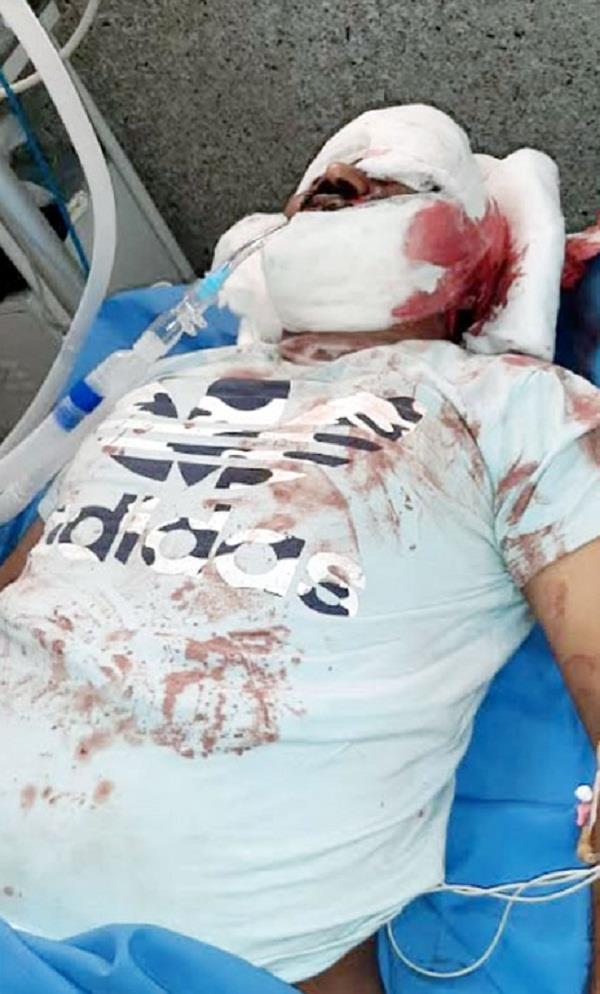 asi arrested in drug racket shot himself