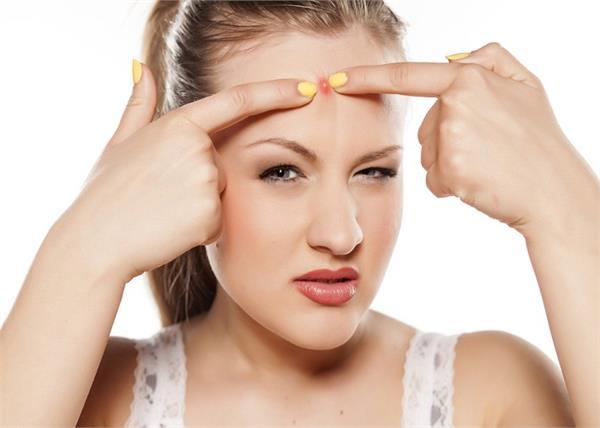 Beauty Tips: मुंहासे हटाने में मददगार हैं ये 8 देसी नुस्खे