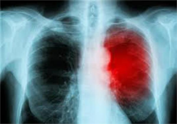 study lung cancer cases increasing at fast in non smokers