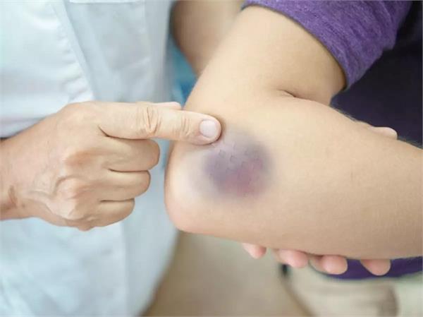चोट के बिना ही शरीर पर पड़ते हैं नील तो ना बरतें लापरवाही, जानिए इसकी 9 वजहें