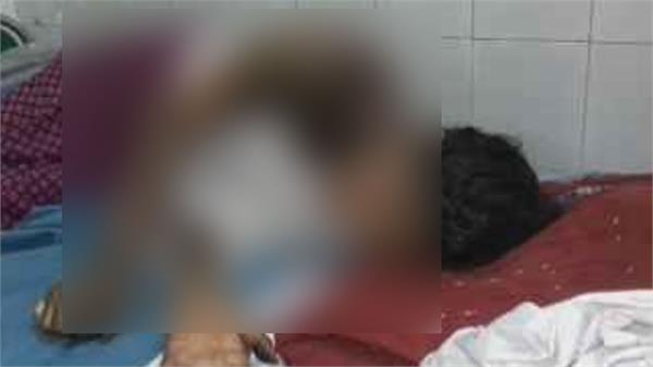 teenager burnt to protest against molestation in sitapur