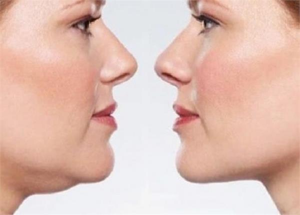 चेहरे के एक्स्ट्रा फैट से छुटकारा दिलाएंगे ये 7 आसान उपाय