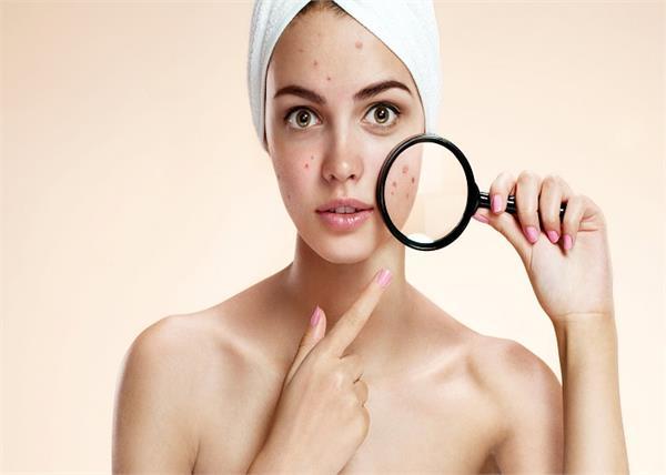 Skin Care: मुंहासों की जड़ से छुट्टी करेगी उड़द दाल, 3 तरीकों से करें इस्तेमाल