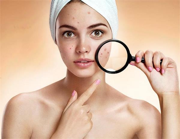 Blind Pimples: स्किन के अंदर होने वाले मुहांसों से कैसे निपटें?