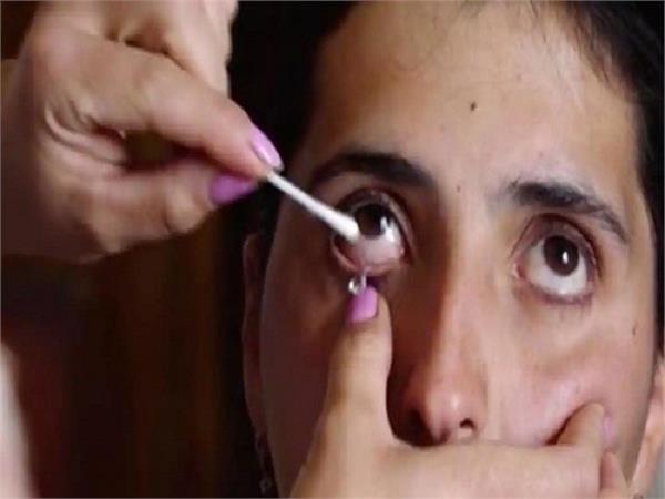 अजब-गजब: आंसू नहीं, रोते समय इस महिला की आंख से निकलते हैं क्रिस्टल