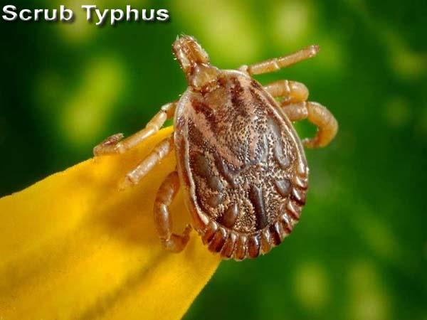 death from scrub typhus in igmc