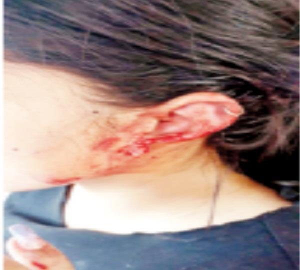 dog attack on girl