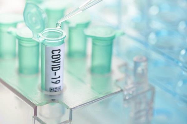 coronavirus 64 positive case 2 deaths