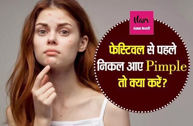फेस्टिवल से पहले निकल आए Pimple तो क्या करें?