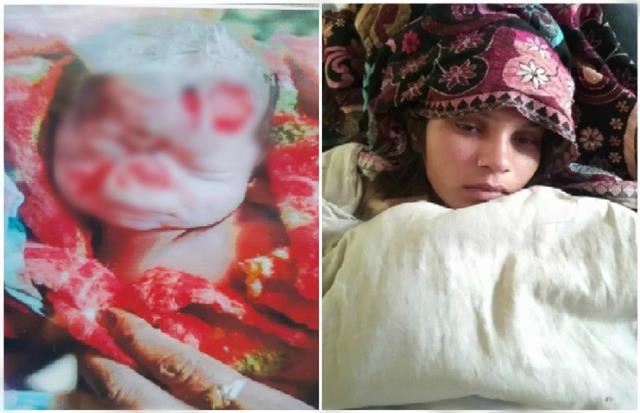 hospital s gross negligence newborn s body was made of mice