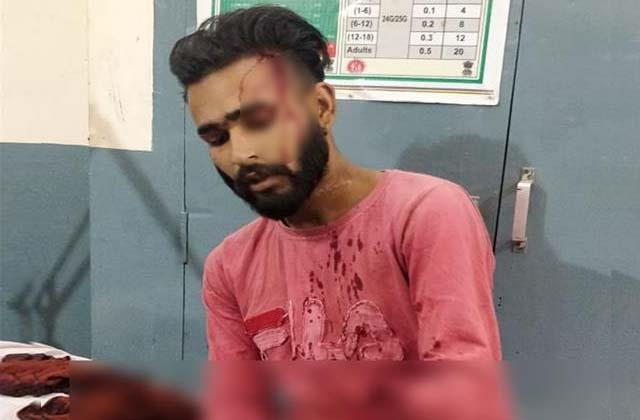 young man s hand severed in an attack
