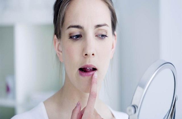 Winter Care: फटे होंठों से परेशान है तो अपनाएं ये नुस्खे, तुरंत दिखेगा असर