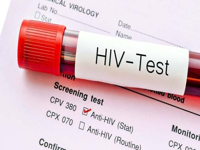 212 people hiv positive in himachal in corona period