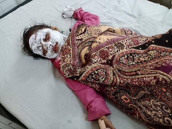 scorched daughter due to hot vegetable fall from mother s hand