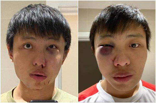 asian student assaulted in  racist  coronavirus attack in uk