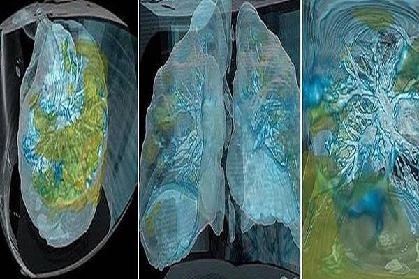 3d picture of corona surfaced how the fire ruins the lungs in a few days