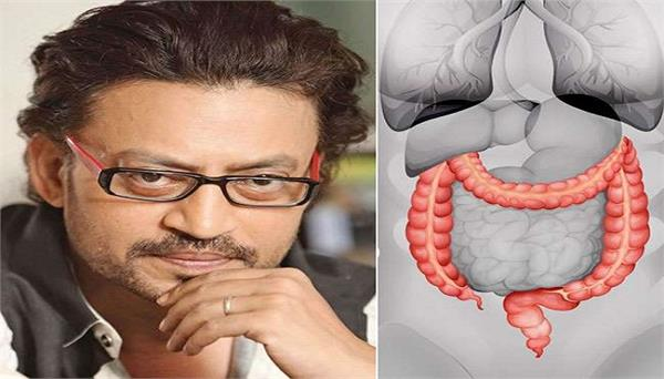 cologne infection irfan life wins cancer know about colon infection