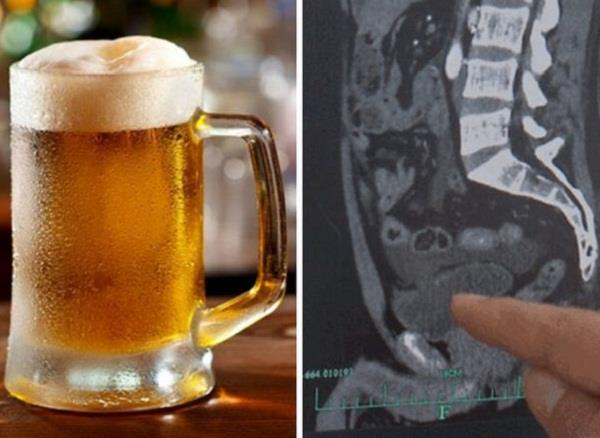 chinese man drinking 10 bottles of beer  ruptured urinary bladder