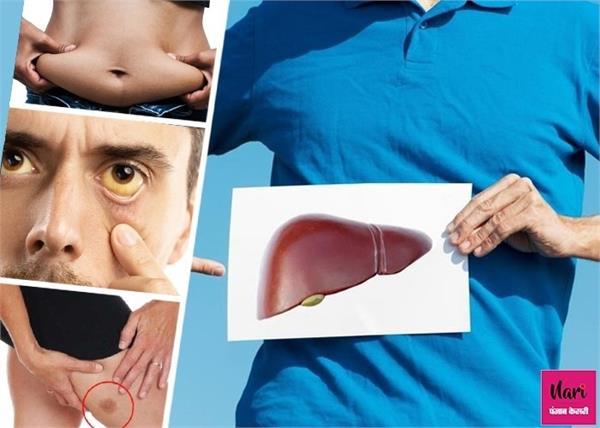 शरीर में दिखें ये 8 लक्षण तो समझ लें 80% खराब हो चुका है लिवर
