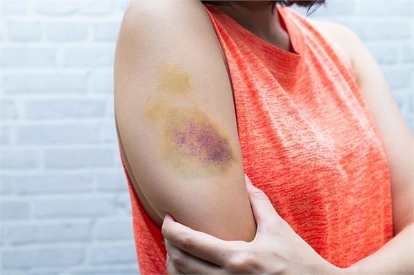 बेवजह ही शरीर पर पड़े नीले निशान को हल्के में ना लें, जानिए कारण व इलाज