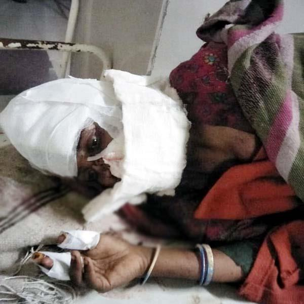 husband attack on wife with sharp weapon