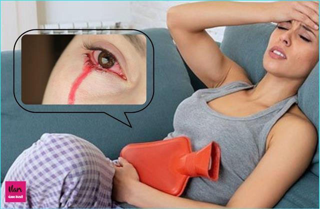 बीमारी ऐसी कि महिला रोती है 'खून के आंसू', पीरियड्स से जुड़ा क्नैक्शन
