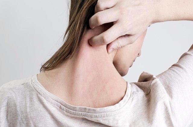 Skin Care: खुजली व रैशेज से राहत दिलाएंगे ये देसी उपाय, ऐसे करें इस्तेमाल