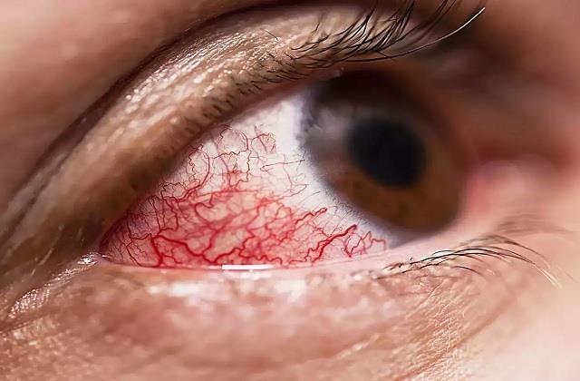 कोविड से ठीक हुए मरीजों को अंधा कर रही ब्लैक फंगस, जानिए किन्हें अधिक खतरा