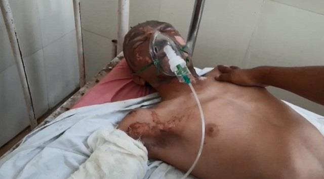 fauji s family attacked with petrol bomb divyang son and father scorched