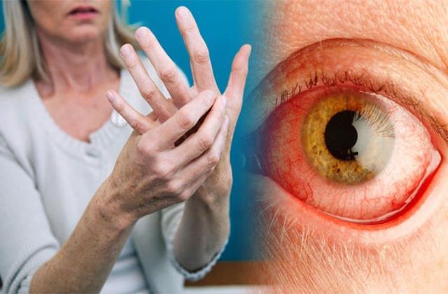 Arthritis के मरीज सावधान, अंधा कर सकती है यह बीमारी