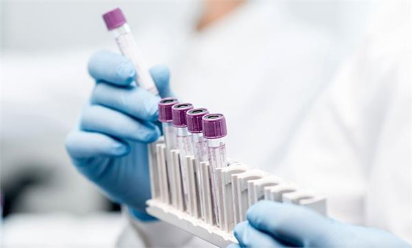coronavirus 59 positive case