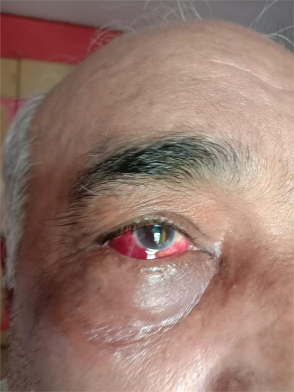 hooliganism of shiv sainiks at the peak former navy officer brutally beaten